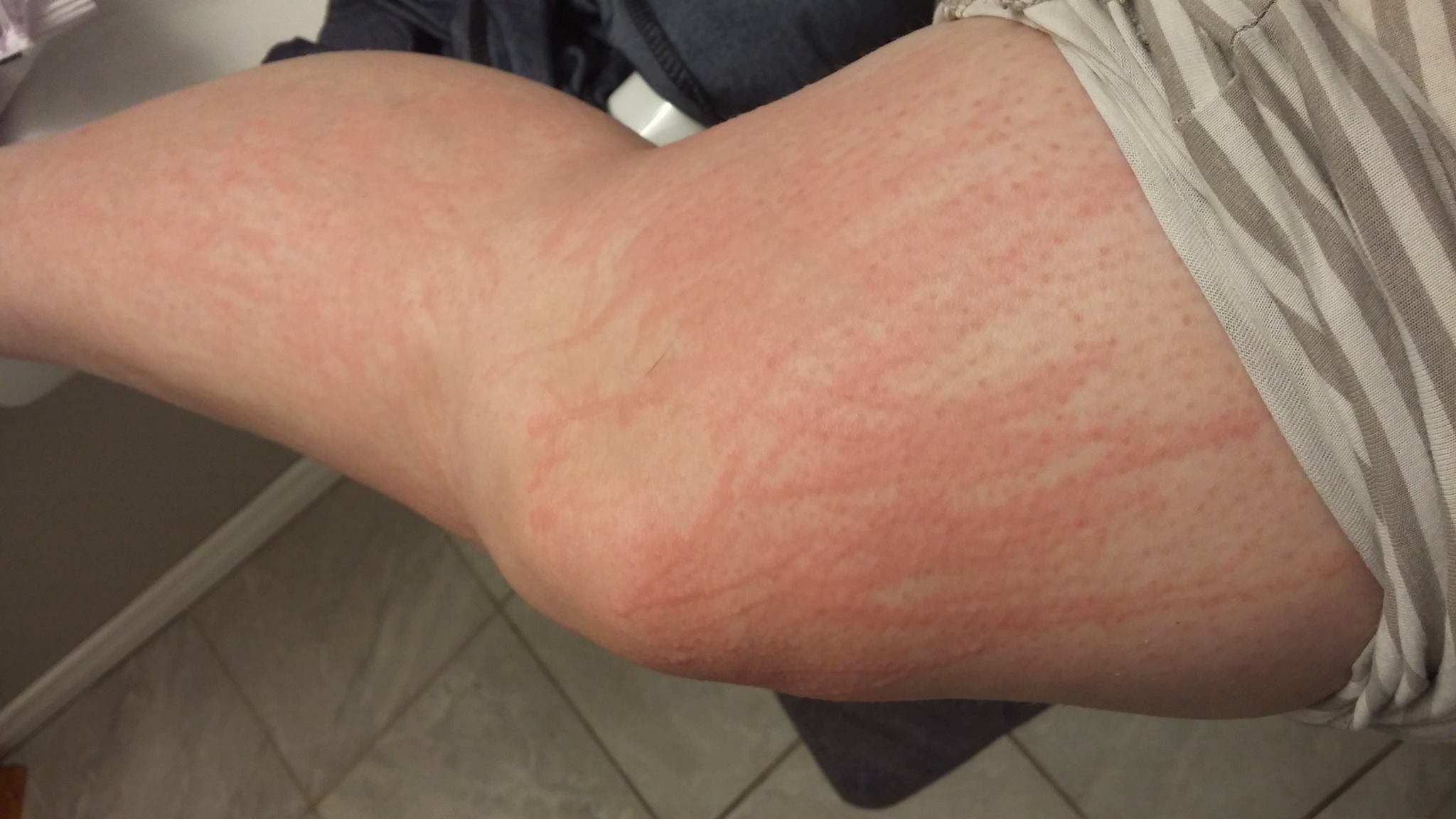 what causes itchy bumps on the skin